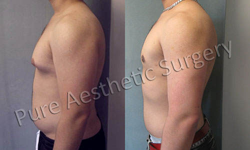 Male Breast Surgery 1