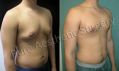 Male Breast Surgery 2