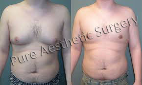 Male Breast Surgery 3