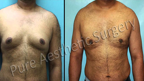 Male Breast Surgery 4