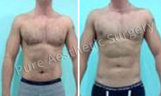 Six Pack Plastic Surgery Delhi, India   6 Pack Surgery for